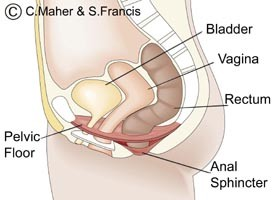Diagram of a female pelvic floor