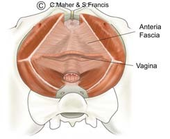 Diagram of a female pelvis indicating the anteria fascia and the vagina